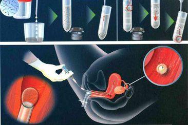 试管过程中胚胎如何植入子宫