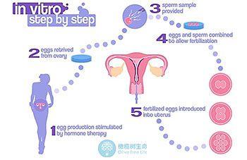 泰国试管婴儿流程具体是什么步骤