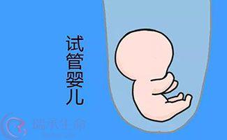 试管婴儿满足这几个条件成功率更高