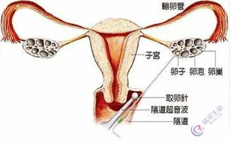 试管婴儿过程卵子是如何取出来?