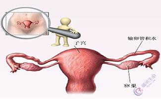 女性输卵管导致不孕,是做试管婴儿还是手术?