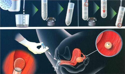 胚胎移植.jpg