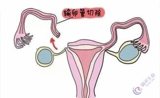 双侧输卵管切除做试管婴儿多少钱