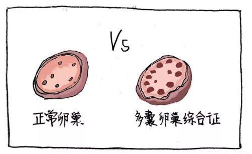 什么是多囊卵巢