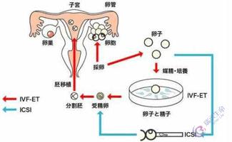 试管婴儿流程-体外授精