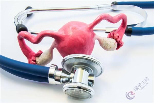 泰国试管婴儿:内分泌失调性造成的不孕有哪些症状
