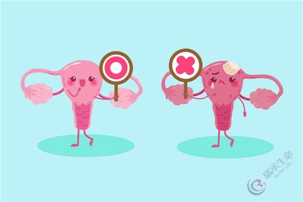 卵巢功能好不好?你需要做这3个生育能力检查