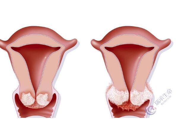 轻度宫颈糜烂可以做试管吗?对成功率有没有影响?