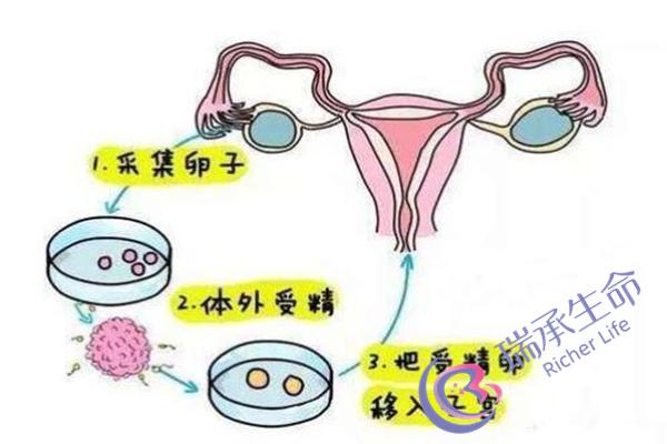 天津哪家医院试管婴儿做比较好?水平如何?